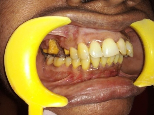 Recession Tooth with Mobility Before in Madras Dental Clinic