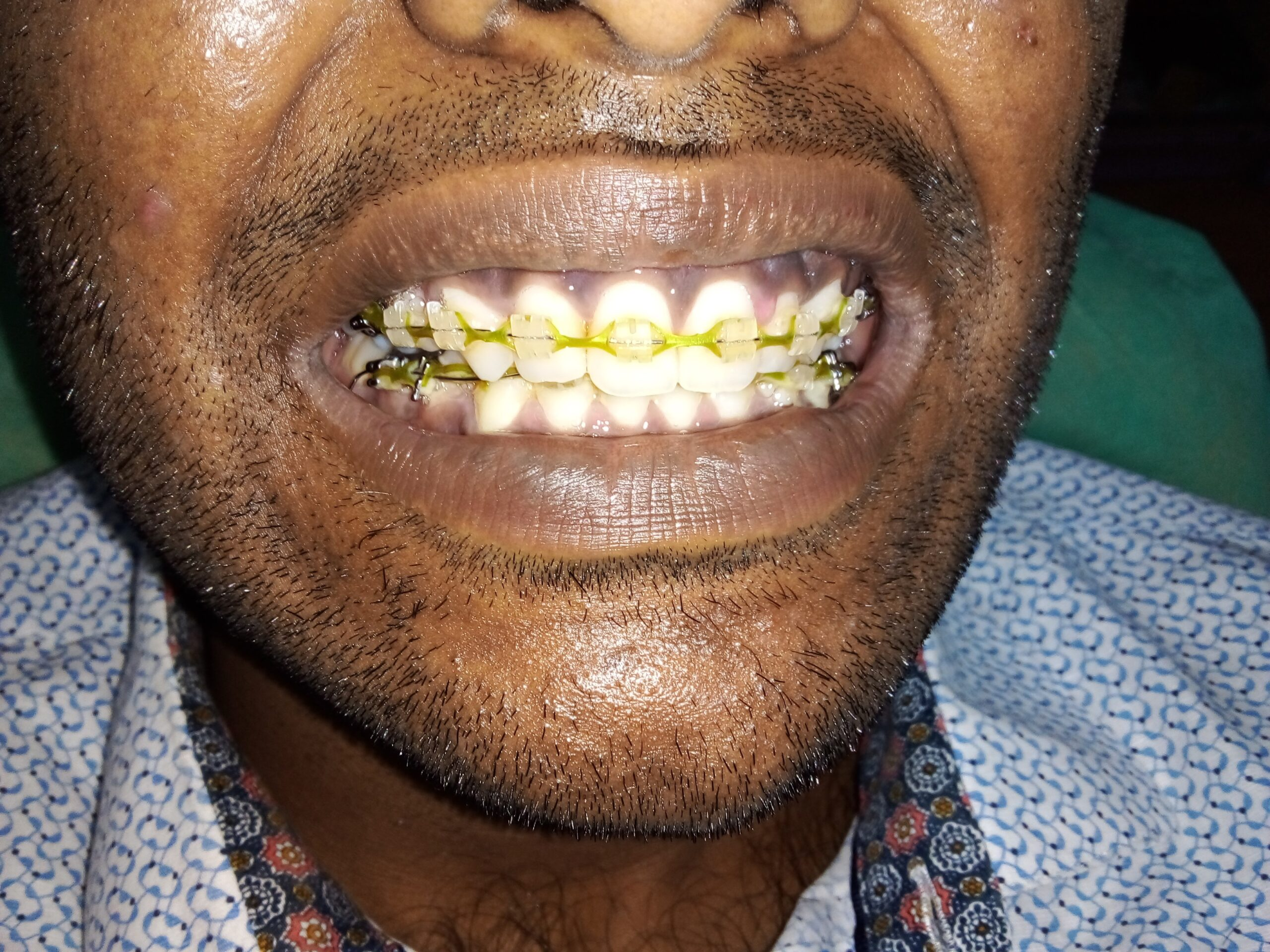 Orthodontic Treatment before coming to the best Madras Dental Clinic in Anna Nagar