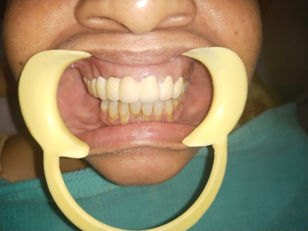 Proclined upper fronttooth with root exposure after coming to the best Madras Dental Clinic in Anna Nagar