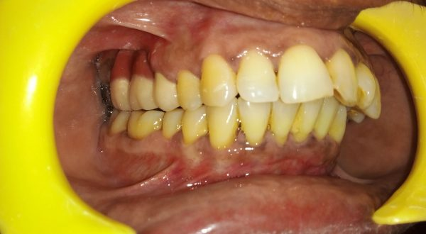 Recession Tooth with Mobility after Madras Dental Clinic
