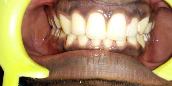 Orthodontic Treatment after coming to the best Madras Dental Clinic in Anna Nagar