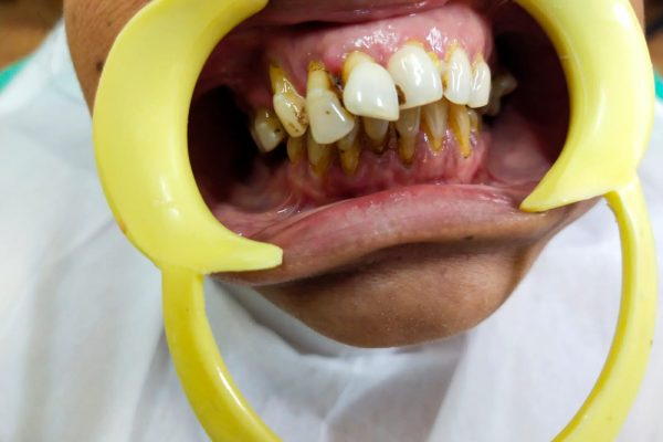 Proclined upper fronttooth with root exposure before coming to the best Madras Dental Clinic in Anna Nagar